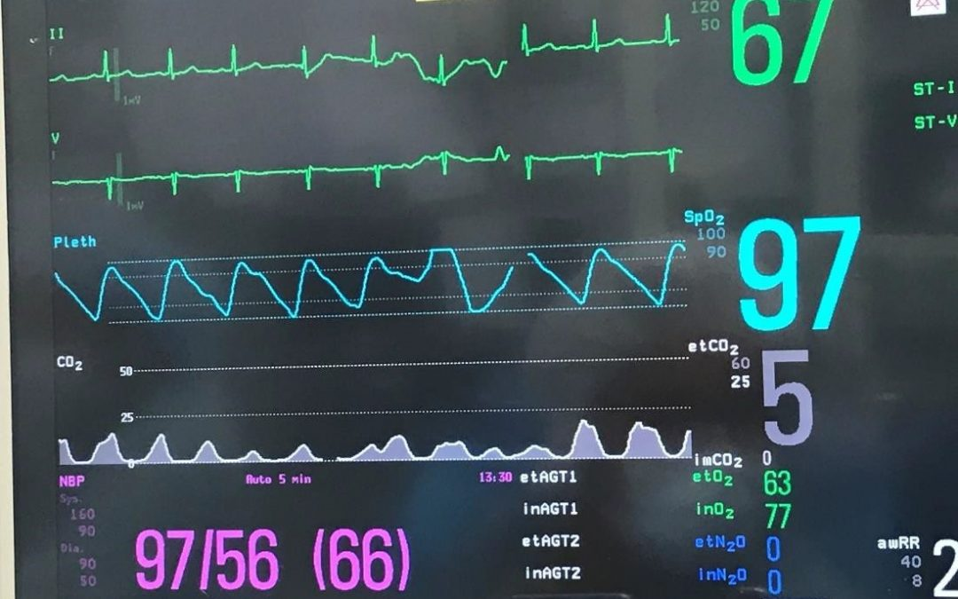 A Systematic Approach to Capnography Waveforms
