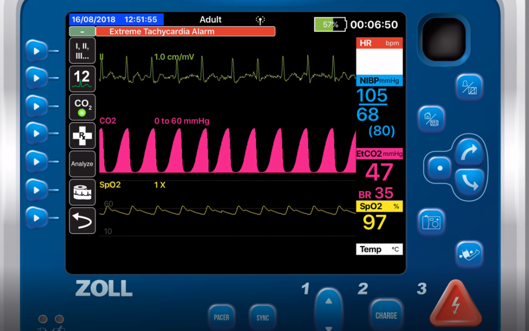 Using Capnography to Titrate CPAP