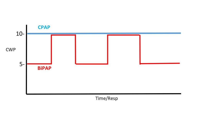 Essentials of BiPAP